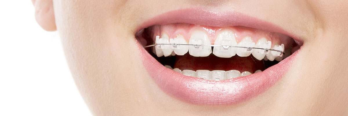 Los Angeles Invisible Orthodontics