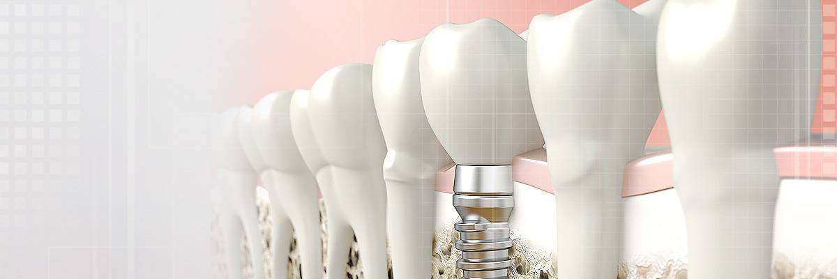 Los Angeles Dental Prosthetics