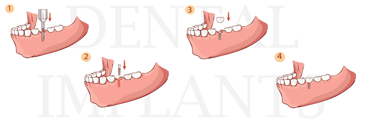 Los Angeles The Difference Between Dental Implants and Mini Dental Implants
