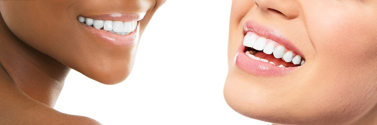 Los Angeles Teeth Whitening